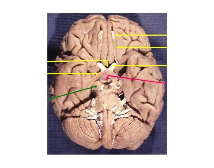 Inferior view of human brain purposegames ccuart Image collections