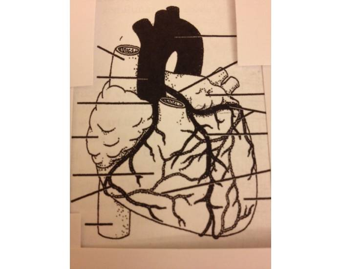 Heart - Anterior View of Arterial Distribution