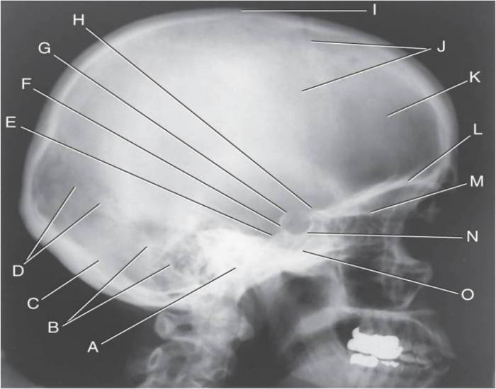 Figure 12 Lateral Projection of Skull