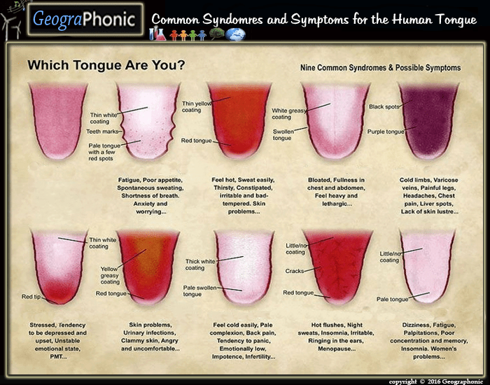 Common Syndromes for the Human Tongue
