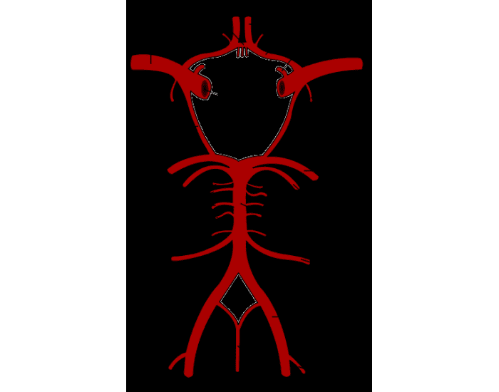 Circle Of Willis Challenge Purposegames