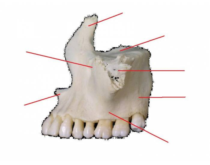 Label The Lateral View Of The Maxilla