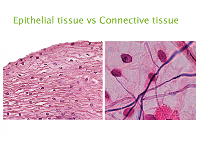 connective and epithelial tissue