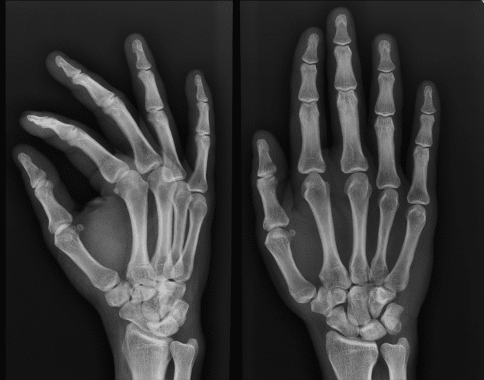 hand xray anatomy - PurposeGames