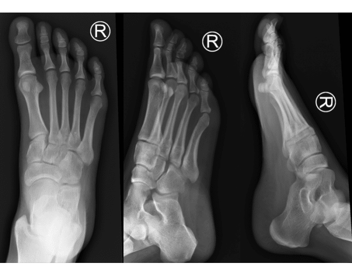 3 View Foot X Ray Anatomy