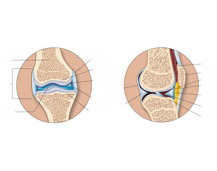 Articular Cartilage & Synovial Joint