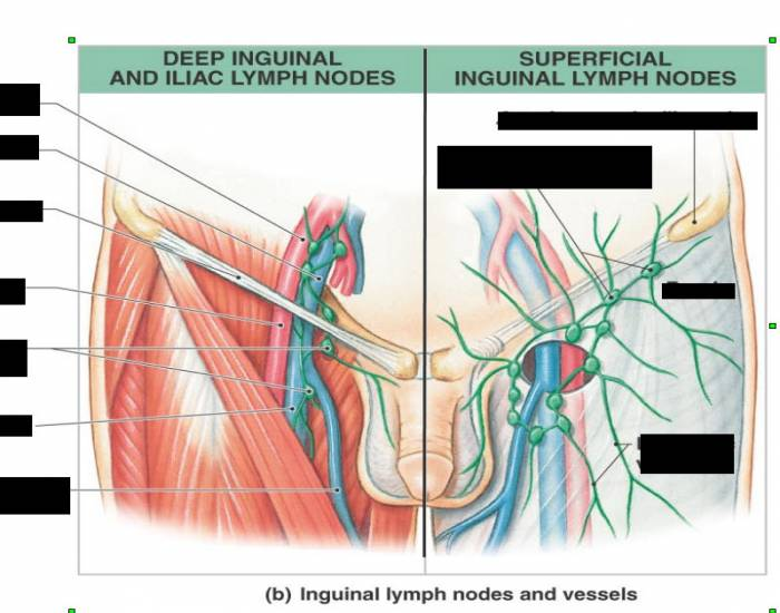 Lymphatic Drainage of the Inguinal Region