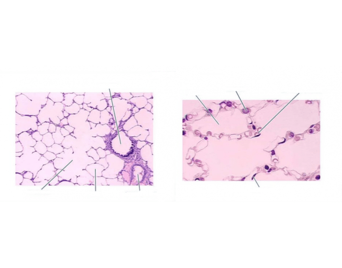 Label Lung Histology