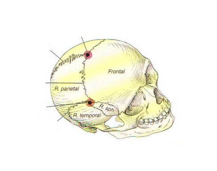 Skull Sutures Vertex view