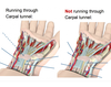 Carpal tunnel features
