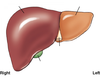 Chapter 14 Biliary Tract and UGI