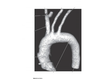 3D Imaing of the Aortic Arch