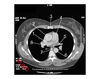 Heart and related vessels (Axial CT Chest 4 of 5)