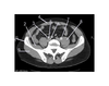 Pelvis (CT Axial Soft Tissue 3 of 14)