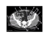 Pelvis (CT Axial Soft Tissue 6 of 14)