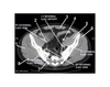 Pelvis (CT Axial Soft Tissue 7 of 14)