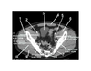 Pelvis (CT Axial Soft Tissue 8 of 14)