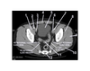 Pelvis (CT Axial Soft Tissue 9 of 14)