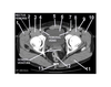 Pelvis (CT Axial Soft Tissue 11 of 14)