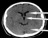 Normal CT Brain - Middle Cut 2