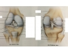 tibiofemoral joint (knee)