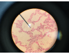 Tissue: Simple squamous epithelium