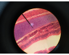 Psuedostratified ciliated columnar epithelium