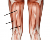 Muscles of the Posterior Compartment of the Thigh