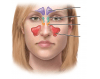 Frontal sinuses